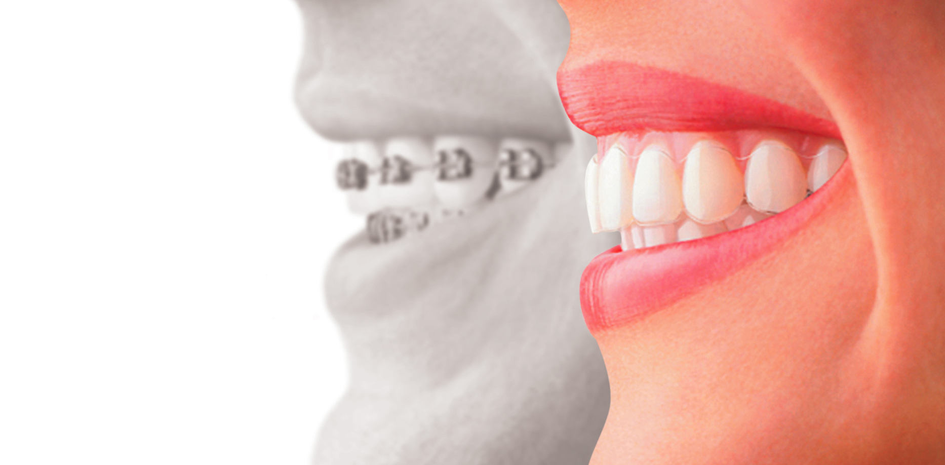 Orthodontie adulte invisible - Invisalign